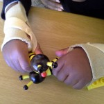 Hand function is improved by hand splints